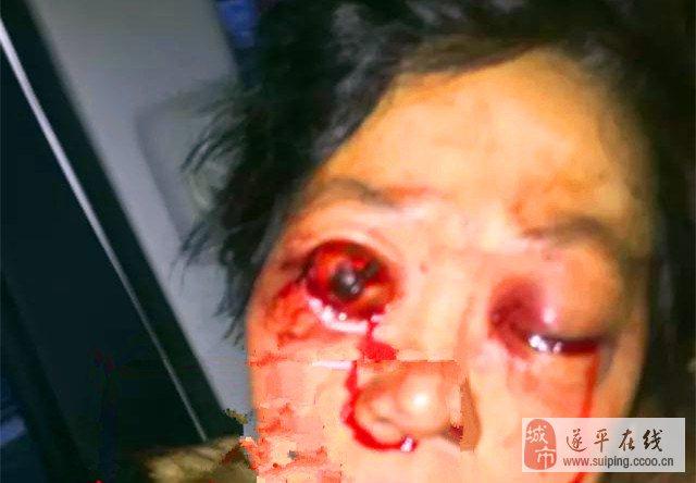 情人节下午,遂平花庄镇一女子被男友挖出双眼!