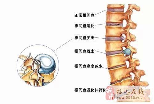 腰椎间盘突出症颈椎病用脊痛消治愈率突破奇迹