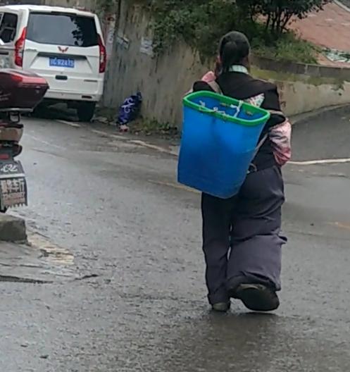 镇雄果珠一村民的脚有桶那么粗!这是得什么病啊